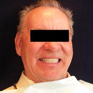Съемные зубные протезы зафиксированные с помощью мини-имплантатов