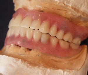 Полные съемные пластиночные зубные протезы