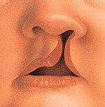 Врождённые расщелины губы - заячья губа