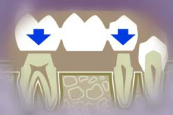 Конструкция мостовидного протеза