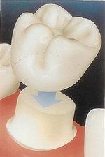 Как долго служат коронки на зубах