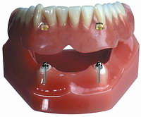 Условно-съемное протезирование зубов