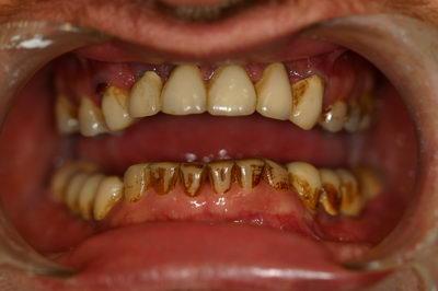 ДО ОПЕРАЦИИ - Имплантация зубов под общим наркозом в Израиле