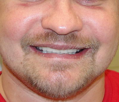 ЧЕРЕЗ 5 ЧАСОВ ПОСЛЕ ОПЕРАЦИИ - Имплантация зубов под общим наркозом в Израиле
