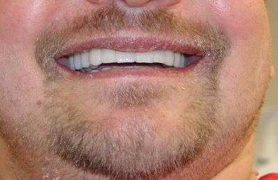 Имплантация и протезирование зубов за 1 операцию под общим наркозом - ПОСЛЕ ОПЕРАЦИИ