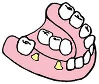 Восстановление нескольких потерянных зубов